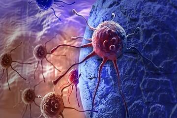 سرمایهگذاری برای توسعه درمان سرطان با نانوذرات و لیزر