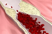 تاثیر هورمون درمانی روی کاهش بیماریهای قلبی