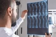 استفاده از کاشت نانولولههای کربنی برای ترمیم رشتههای عصبی