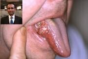 بهره گیری از هوش مصنوعی برای تشخیص و درمان سرطان دهان