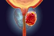 میزان شیوع و عوامل موثر بر بیاختیاری ادرار پس از جراحی سرطان پروستات