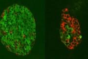 روش جدید احیای سلولی برای درمان دیابت