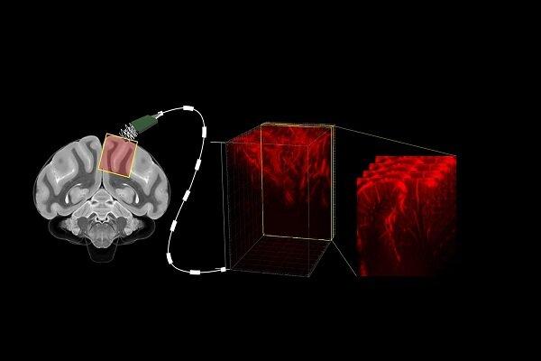 دستگاهی که با امواج سونوگرافی مغز را میخواند