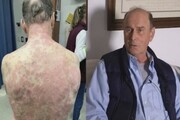 تزریق واکسن «جانسون و جانسون» مرد ۷۴ را به بیمارستان کشاند