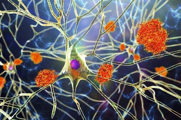 استفاده از نور و اکسیژن برای درمان آلزایمر