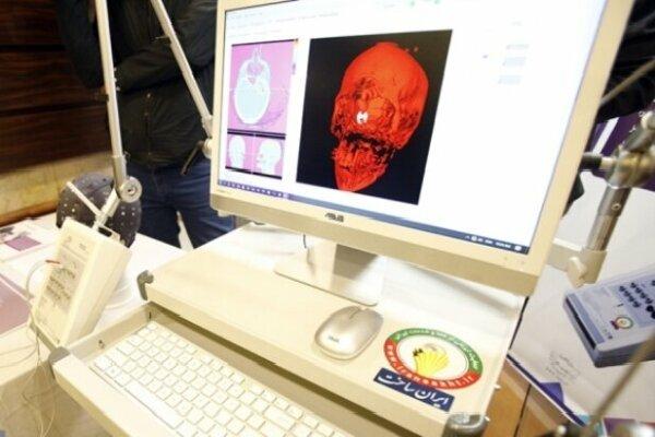 تجهیز ۳۰ مرکز درمانی و دانشگاهی به تجهیزات علوم شناختی