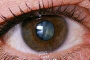 مشکلات چشمی خطر ابتلا به زوال عقل را افزایش می دهد