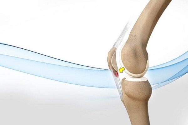 علت زانو درد در سنین جوانی چیست؟