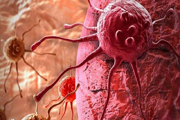 نشانه های مرگبارترین سرطان در زنان چیست؟