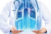 نقش فیزیوتراپی تنفسی در مبتلایان به کرونا چیست؟