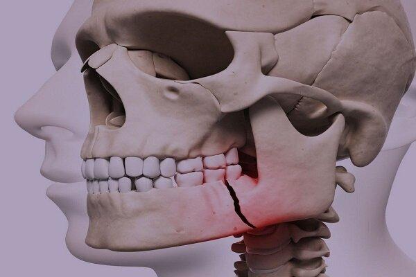 ۵۵ درصد ایرانیهای بالای ۶۵ سال دندان ندارند