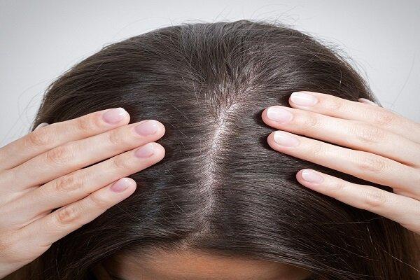 نحوه افزایش تراکم مو با چند روش خانگی