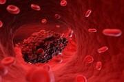علائم اولیه لخته شدن خون چیست؟