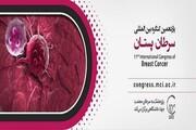 جهاد دانشگاهی یازدهمین کنگره بینالمللی سرطان پستان را برگزار میکند