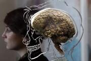 مغز انسان پس از شروع تمدنهای باستان کوچک شد