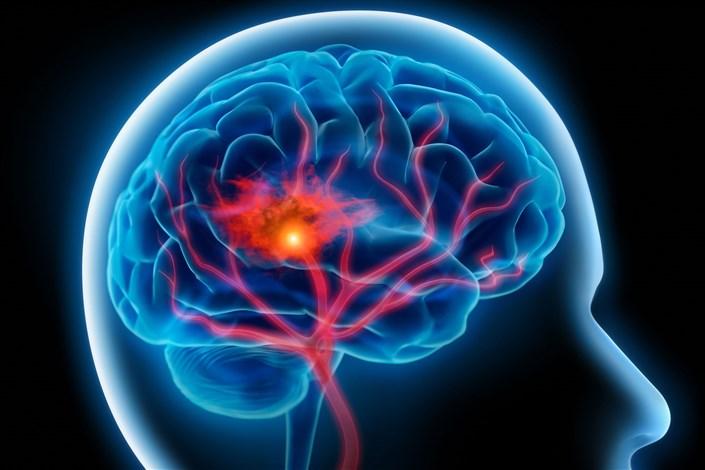 هر سال ۱۷ میلیون نفر در دنیا دچار سکته مغزی میشوند و6 میلیون نفر می میرند/فشار خون را جدی بگیرید