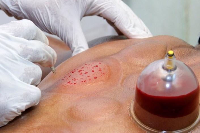 درمان بسیاری از بیماریهای خونی با حجامت/ چهارشنبه و جمعه حجامت ممنوع