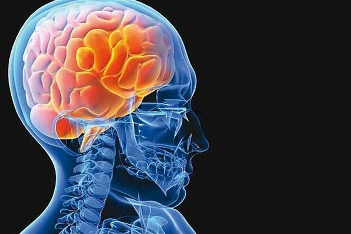 متخصص گفتار درمانی:  65 درصد بیماران سکته مغزی به اختلال بلع دچار می شوند