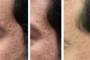 ساخت دستگاهی برای جوانسازی پوست به صورت غیر تهاجمی
