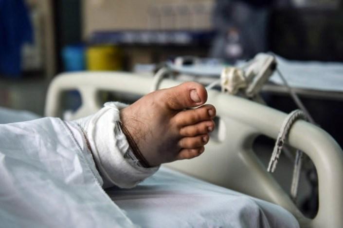 20 درصد تخت های مراقبت ویژه مربوط به بیماران مرگ مغزی است