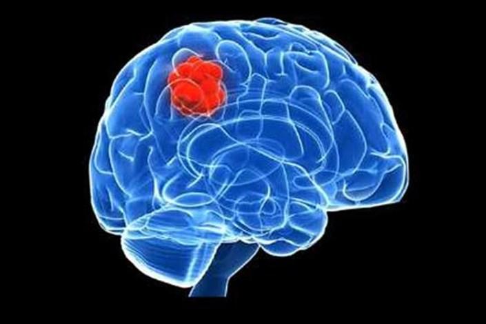 سکته مغزی در ۴ ساعت اولیه قابل درمان است