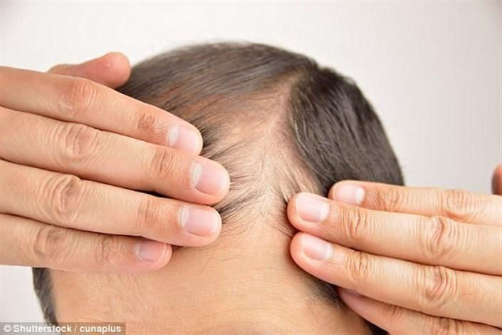 راهی جدید برای درمان ریزش مو