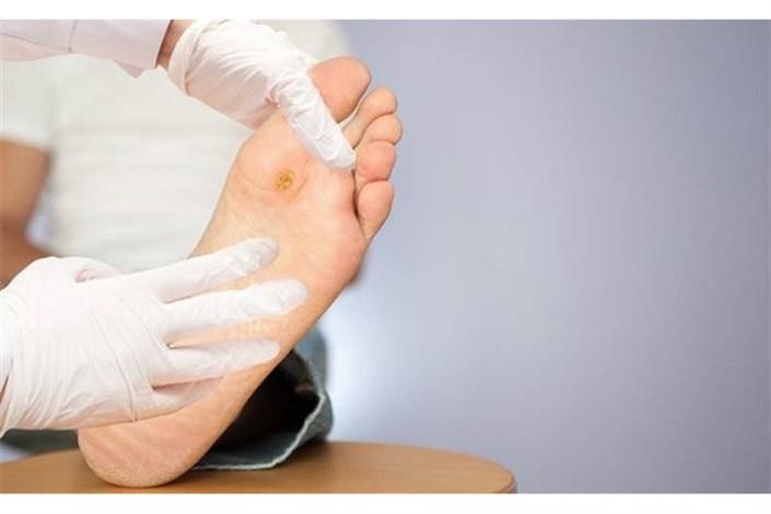 25 درصد افراد مبتلا به زخم پای دیابتی ناچار به قطع عضو هستند