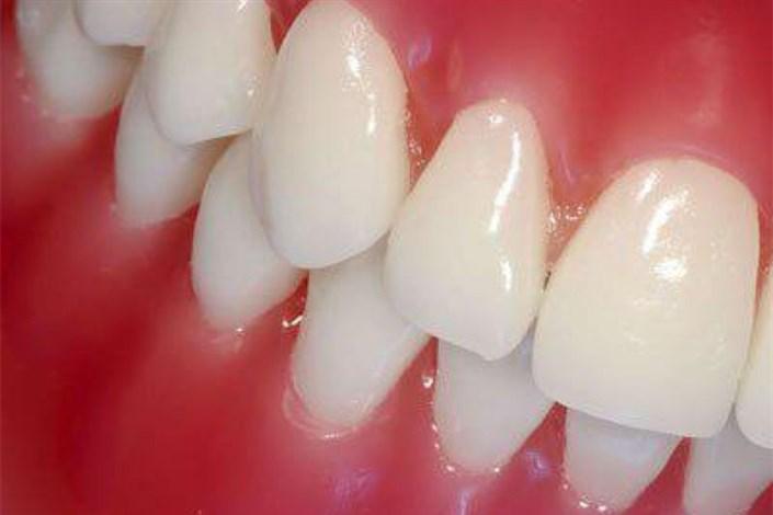خونریزی لثه نشانه چیست؟/ نقش بزاق دهان در جرم سازی دندان