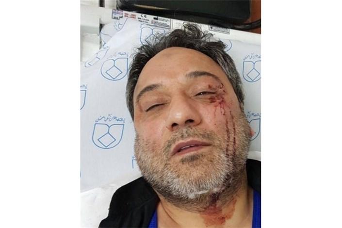 چرا بیمارستانها حمله به پرستاران را گزارش نمی دهند؟/ضرب و شتم ۱۵ پرستار در دوماه گدشته
