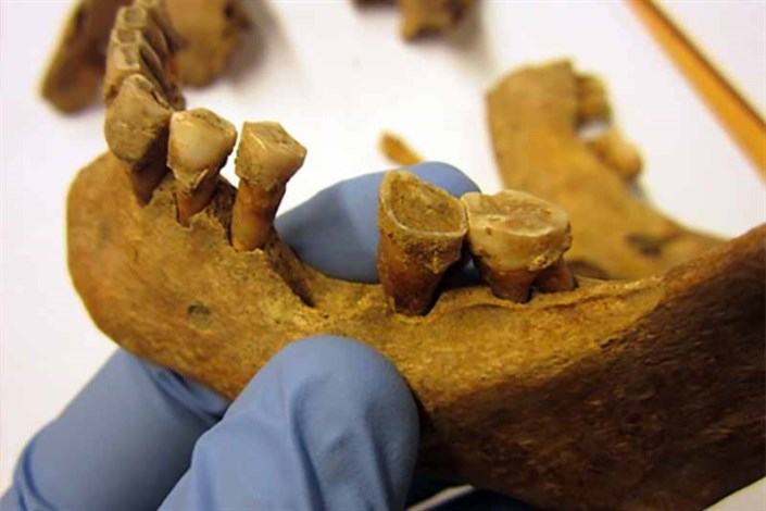 دندان قرون وسطی راز میکروب ها را نشان داد