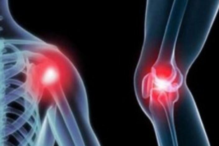 پرینت سه بعدی شاید به درمان استئوآرتریت کمک کند