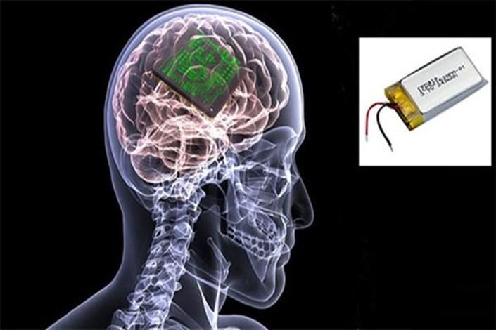 ساخته شدن بخشی از یک سیستم ایمپلنت مغزی