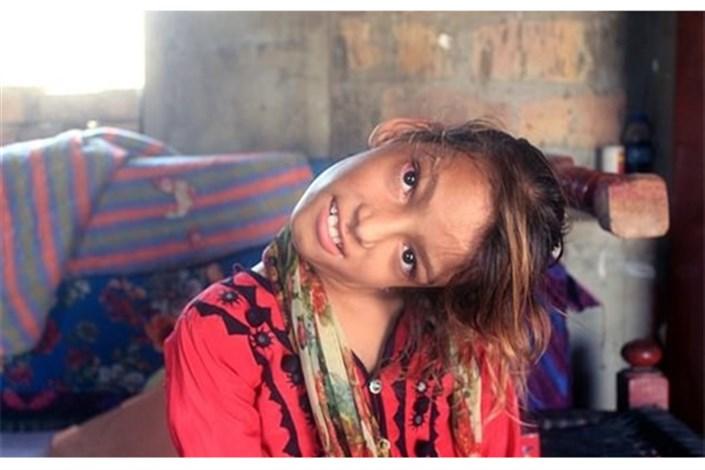 اختلال عجیب دختر ۱۱ ساله پاکستانی+عکس