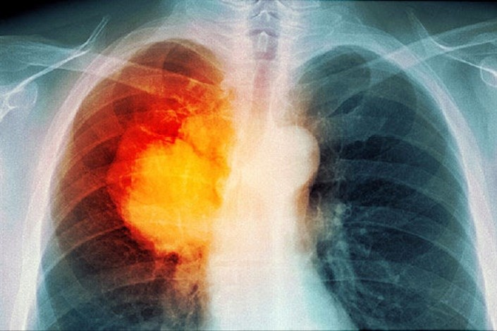 کشف ژنی برای درمان موثر سرطان ریه