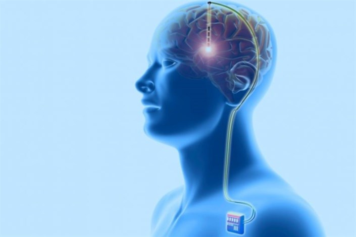 تاثیر تحریک عمیق مغز  بر افسردگی