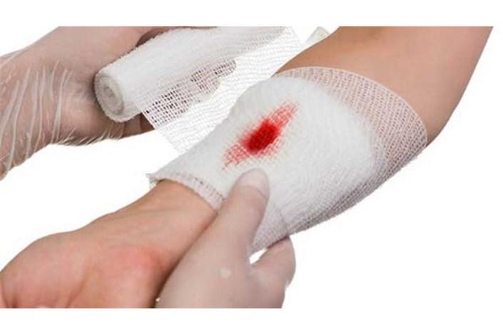 کدام زخمها باعث مرگ بیمار می شود؟/درمان زخم نیاز به کار تیمی دارد