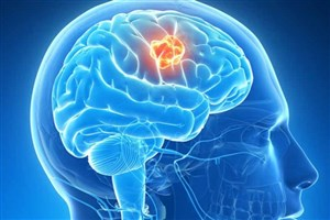 برای پیشگیری از زوال زودهنگام مغز چه باید کرد؟