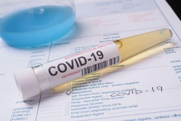 همکاری مشترک برای تسریع تجاریسازی کیت تشخیص COVID ۱۹
