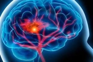 یک اپلیکیشن سکته مغزی را ردیابی می کند