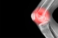 پنج روش ساده برای پیشگیری از درد مفاصل