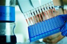 کیت تشخیص مولکولی بومیسازی میشود/ تولید ۸۰۰هزار تست کیت برای تشخیص کرونا