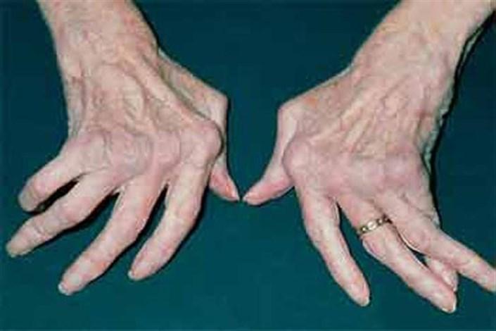 بیماری آرتریت روماتوئید