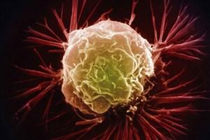 سلول های سرطانی مغز در آزمایشگاه تولید شدند