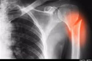 موفقیت محققان ایرانی درترمیم استخوان های آسیب دیده به کمک فناوری نانو