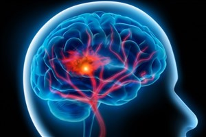 صدای پای سکته مغزی را می شنوید ؟تاثیر غیرمستقیم استرس در بروز سکته مغزی