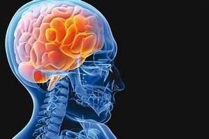 برنامه جدید وزارت بهداشت برای درمان سکتههای مغزی/از طریق اورژانس به بیمارستانها بروید
