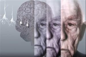 عوامل خطرساز در بروز بیماری آلزایمر/برای درمان این بیماری چه باید کرد؟