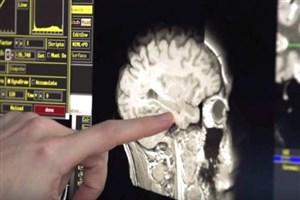 استفاده از هیدروژن برای کاهش آسیب های مغزی