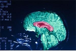 سرنخهایی از پاسخ مغز به ضربات مغزی