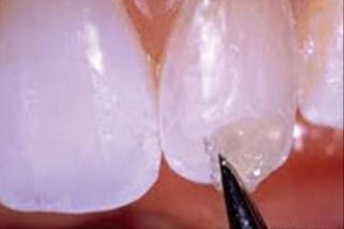 ترمیم دندان با شیشه